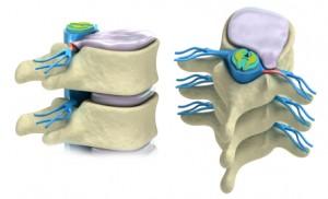 Bulging-Disc-Treatment-Redmond-WA-Remond-Chirorpactor